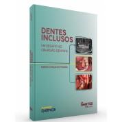 Implantodontia Digital - Da Reconstrução à Reabilitação