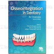 OSSEOINTEGRATION IN DENTISTRY AN INTRODUCTION