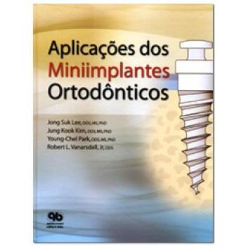 Aplicações dos Miniimplantes Ortodônticos