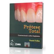 Prótese Total: Convencional e sobre implantes