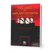 Oclusão em Implantodontia - Um guia simples e muito prático