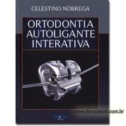 Ortodontia Autoligante Interativa