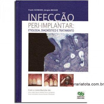 Infecção peri-implantar: Etiologia, Diagnóstico e Tratamento
