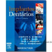 Implantes Dentários: Arte e Ciência