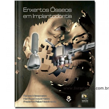 Enxertos Ósseos em Implantodontia