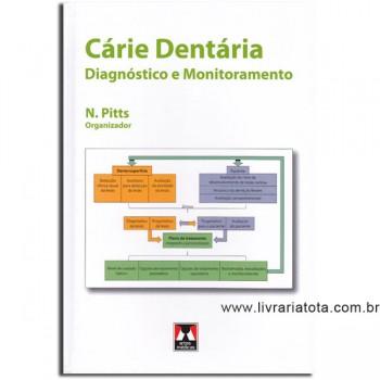 CARIE DENTARIA DIAGNOSTICO E MONITORAMENTO