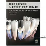 Todos os Passos da Prótese sobre Implante - Do Planejamento ao controle Posterior