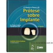 O Passo-a-Passo da Prótese Sobre Implantes - Da 2ª Etapa Cirúrgica à Reabilitação Final