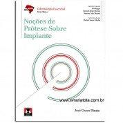 ABENO Noções de Prótese Sobre Implante
