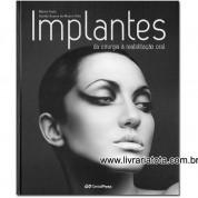 Implantes: da Cirurgia à Reabilitação Oral