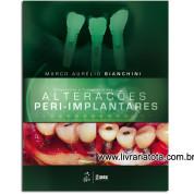 Diagnóstico e Tratamento das Alterações Peri-Implantares