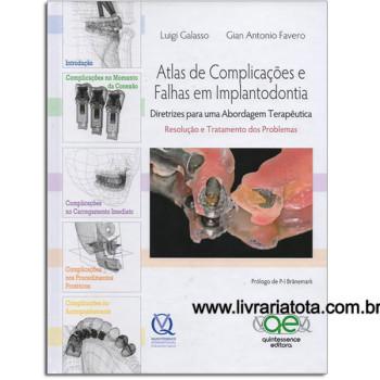 Atlas de Complicações e Falhas em Implantodontia