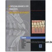 Especialidades em Imagens: Implantes Dentarios