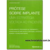 Prótese Sobre Implante Uma estratégia voltada ao paciente