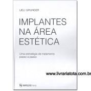 Implantes Na Área Estética – Uma estratégia de tratamento passo-a-passo