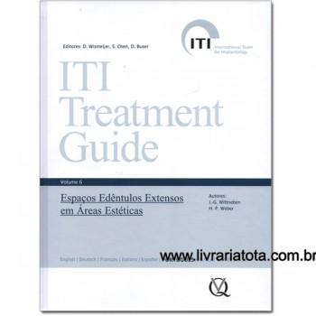 ITI Treatment Guide, Vol 6: Espaços Edêntulos Extensos em Áreas Estéticas