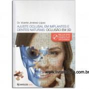 AJUSTE OCLUSAL EM IMPLANTES E DENTES NATURAIS OCLUSAO EM 3D