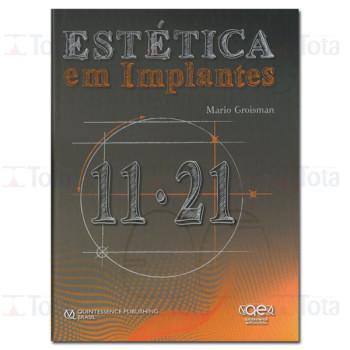 Estética em Implantes 11.21