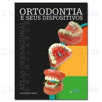 Ortodontia e seus Dispositivos - Atlas Operacional Ortholabor
