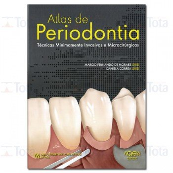 Atlas de Periodontia