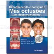 RECONHECENDO E CORRIGINDO MAS OCLUSOES EM DESENVOLVIMENTO