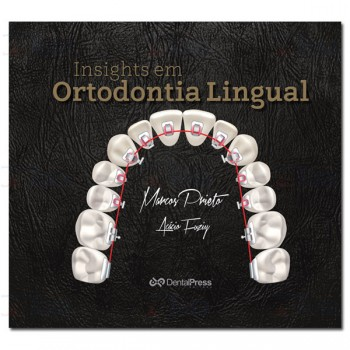 Insights em Ortodontia Lingual