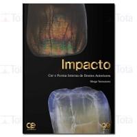 IMPACTO: Cor e Forma Interna de Dentes Anteriores
