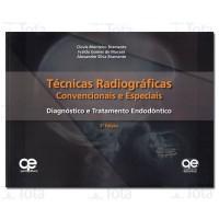 TECNICAS RADIOGRAFICAS CONVENCIONAIS E ESPECIAIS