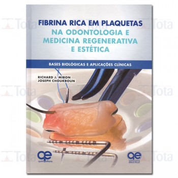 Fibrina Rica em Plaquetas na Odontologia Regenerativa - Base Biológica • Aplicações Clínicas e Estéticas