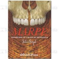 MARPE: expandindo os limites da ortodontia