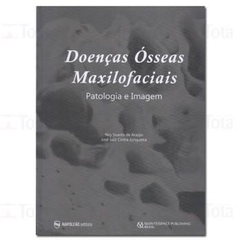 Doenças Ósseas Maxilofaciais – Patologia e Imagem