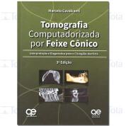 Tomografia Computadorizada por Feixe Cônico