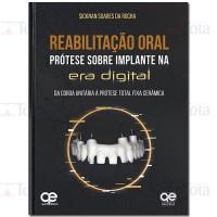 Reabilitação Oral: Prótese Sobre Implante na Era Digital