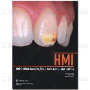 HMI HIPOMINERALIZACAO DE MOLARES E INCISIVOS