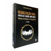 Reabilitação Oral - Prótese Sobre Implante Fluxos Analógico e Digital  - 2ª Edição